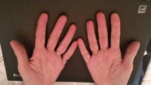 10 Finger Beratungsmethode
